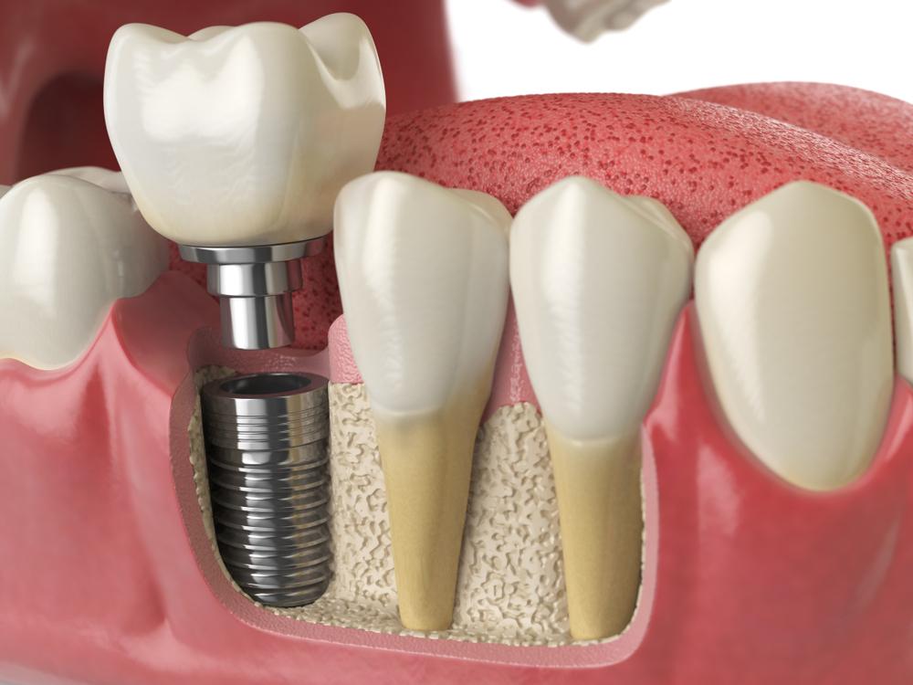 Dentatime