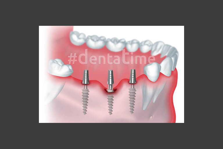 Basal Implants - DentaTime