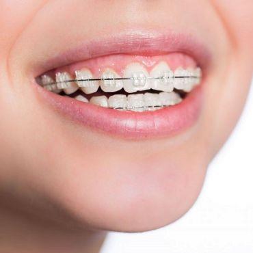 Безплатни ортодонтски прегледи и специална промоция на лечение с брекети стартират в клиника Дентатайм от 5 Февруари 2020